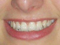 Jak napravit škody na zubech po vánočním mlsání (Ordinace.cz)