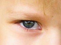 Očím musíme odlehčit! Oční víčka se operují o 40% více než v minulých letech (Ordinace.cz)